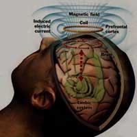 stimolazione-magnetica-transcranica