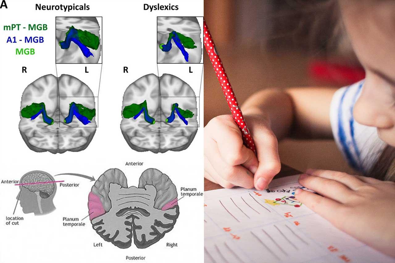 Anatomia-della-dislessia